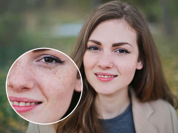 Remove dark spot from a girl's face
