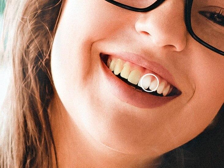 Whiten a girl's teeth effect