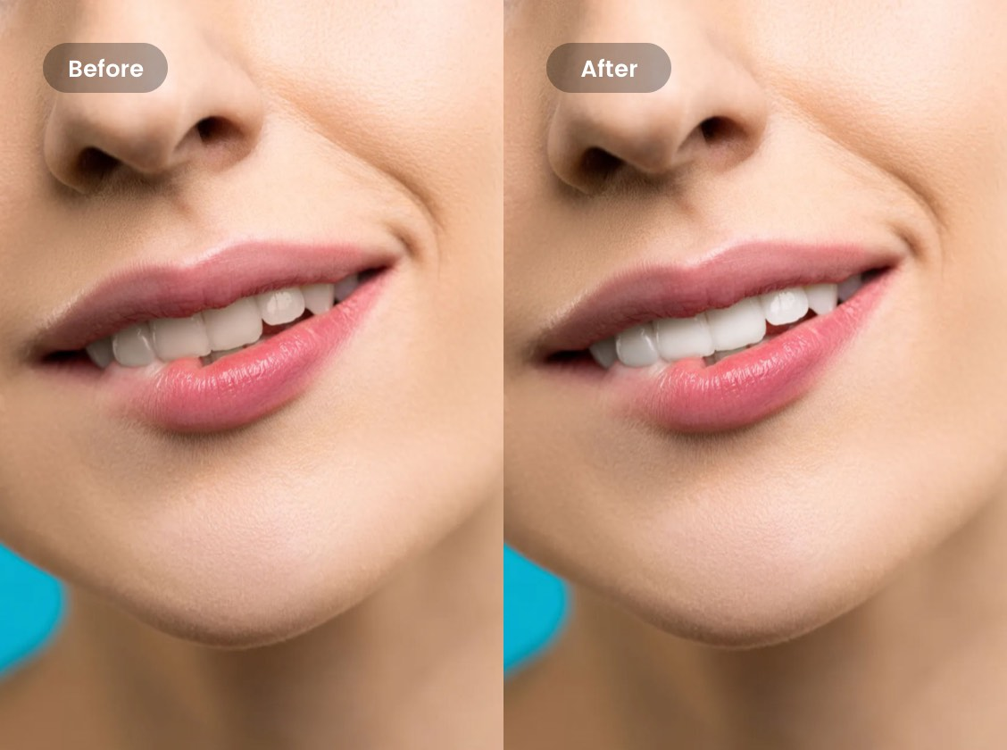 Teeth Whitening Whiten Teeth In Photos Online For Free Fotor